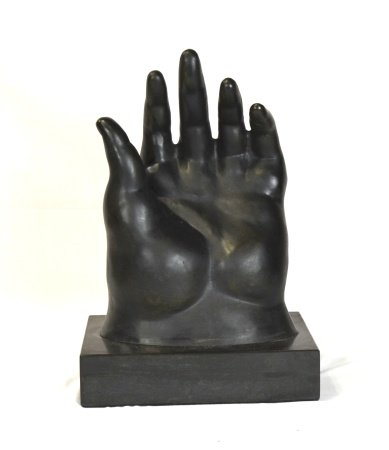 After Botero Bronze Hand
